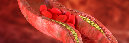 Artery with cholesterol build-up and stuck red blood cells